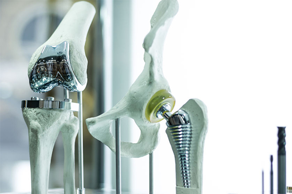 Article image for Thousands of Australians getting 'unnecessary' hip replacements