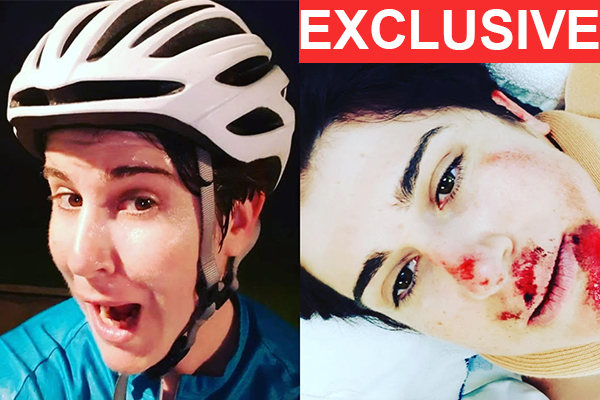 Article image for Shocking images reveal why we NEED helmets