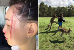 Tourists warned after a series of kangaroo attacks