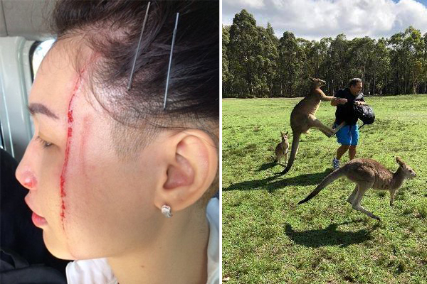 Tourists warned after a series of kangaroo attacks