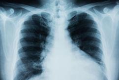 'Promising' test could help thwart nation's worst cancer killer