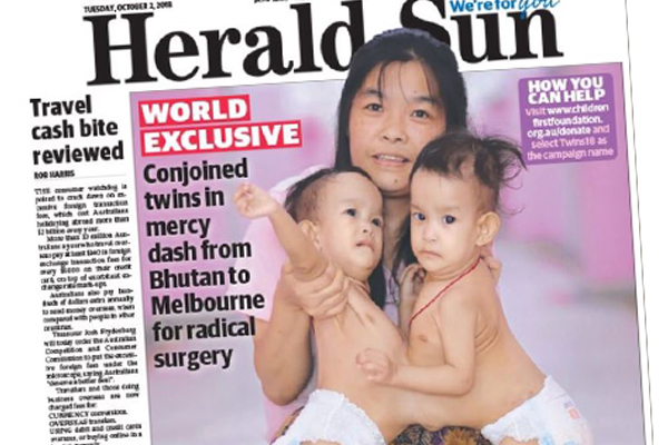 Article image for Surgeons prepare to separate 14-month-old conjoined twins from Bhutan