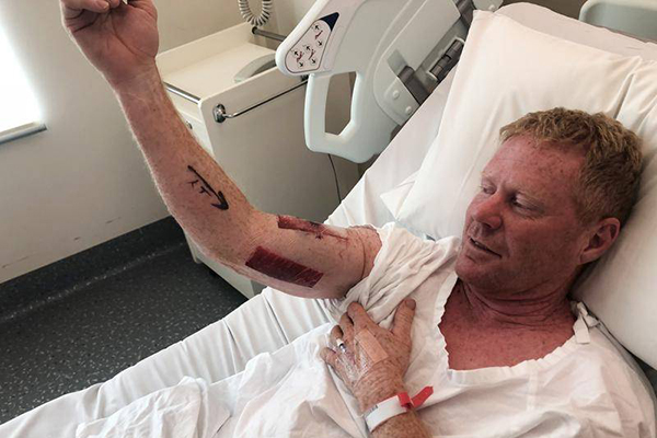 Article image for Shark attack victim has no hard feelings: 'It just reacted to me headbutting it'