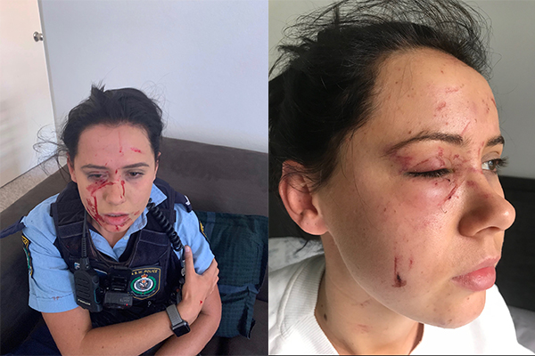 Article image for EXCLUSIVE   Man was on parole when he violently attacked female police officer