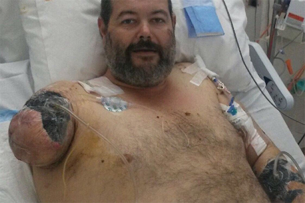 Article image for Man retells how playing dead saved his life in horrific dog attack