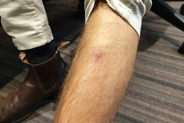 Article image for Does Ben Fordham's team member need to see a doctor about this 'spider bite'?