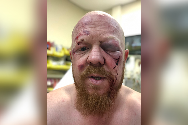 Paramedic bashed during charity bike ride