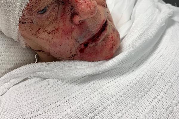 Elderly woman bashed in horrific retirement village home invasion