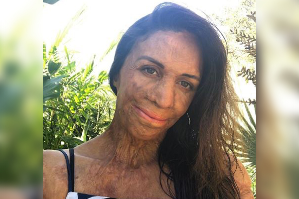 Article image for Turia Pitt launches heartwarming campaign to help bushfire-affected businesses