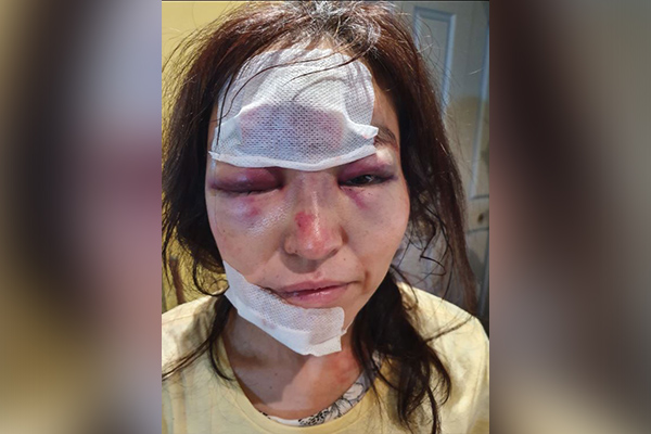 Article image for Police confident public will 'dob in' men who bashed Sydney woman