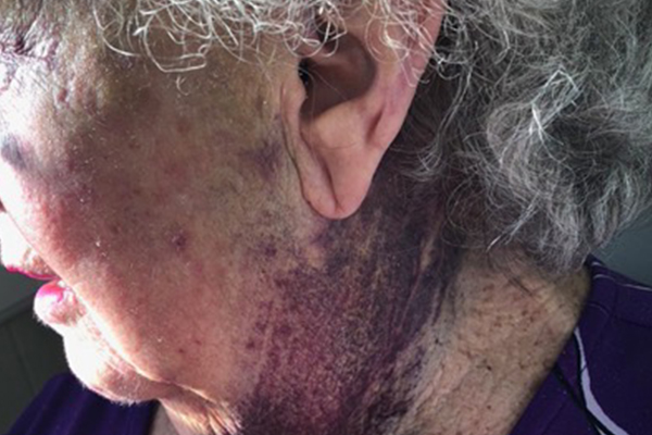 GRAPHIC IMAGES | Grandma sustains horror injuries during hospital visit