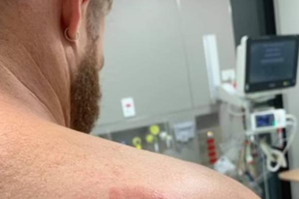 Hospital workers bitten, broken and bruised in horrific attack