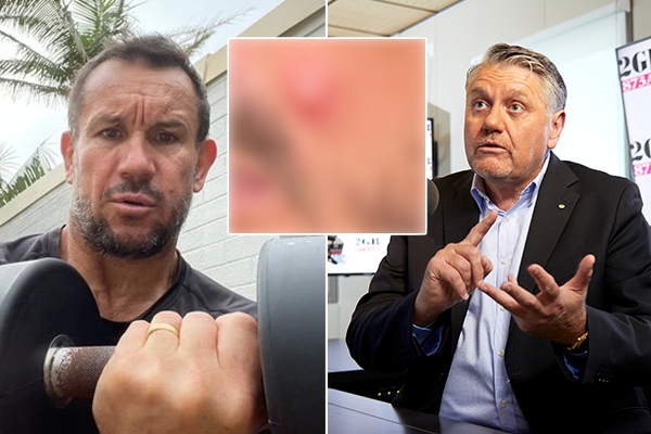 Article image for Ray Hadley's urgent recommendation for Matty Johns' 'infected talent'