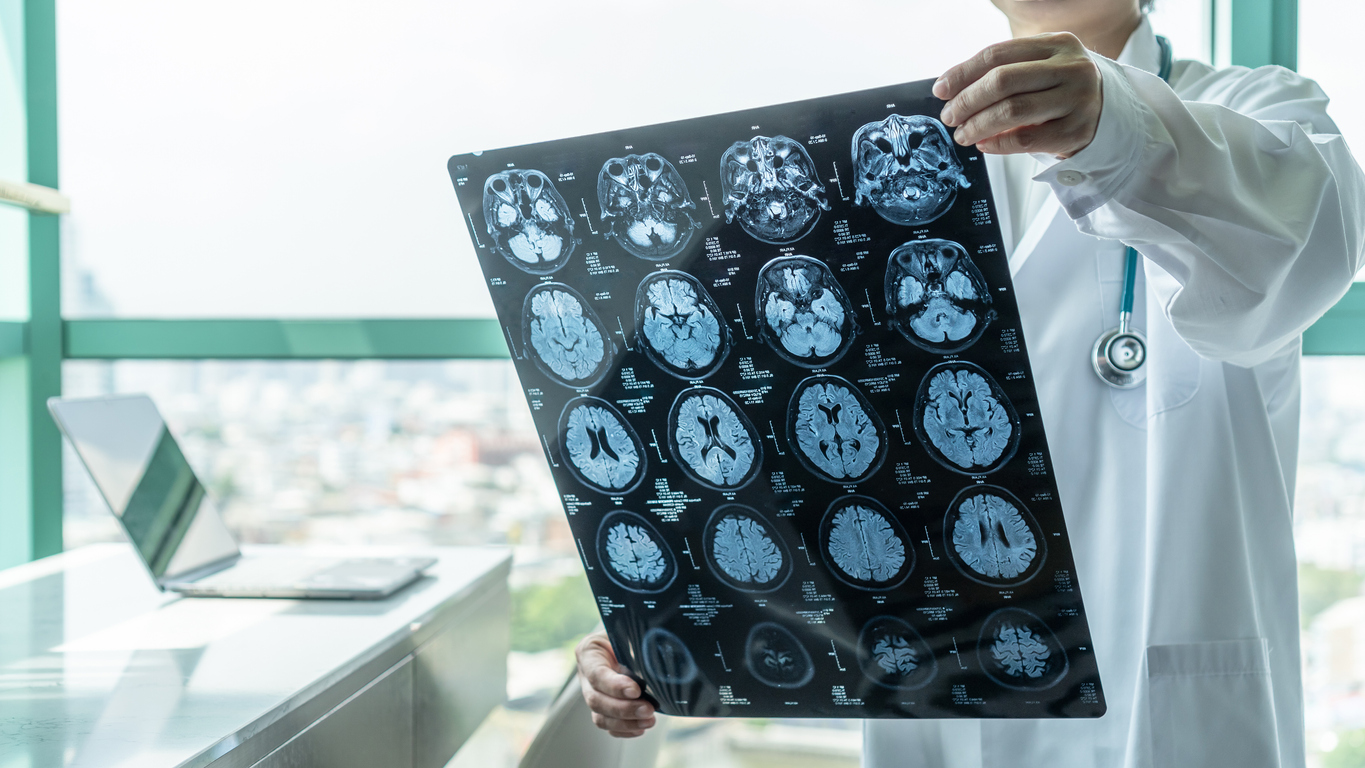 Article image for Neuroscientist's 'blunt' warning for sports codes over consecutive concussion risk