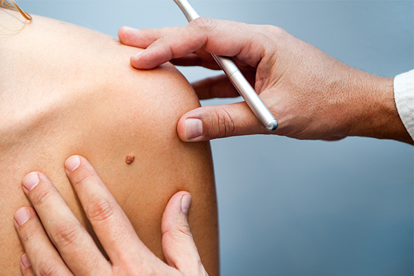 3D skin scans hold hope of early melanoma detection
