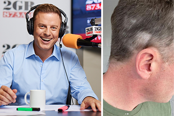 Article image for PHOTOS   Hot or not? Ben Fordham's lockdown haircut